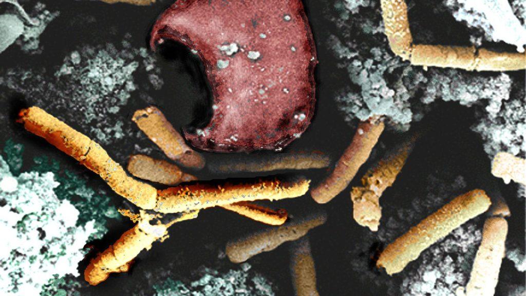 Pathogene bacteriën HACCP Gevarentabel